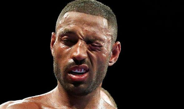 Кел Брук: Мечтая за реванш срещу Ерол Спенс младши
