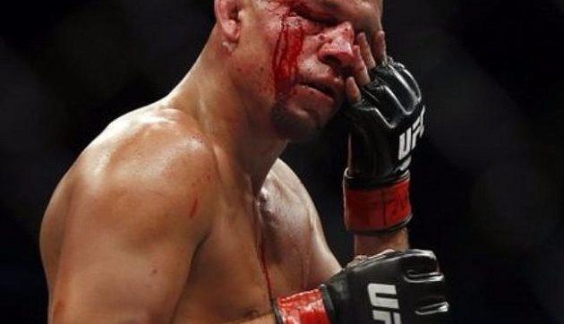 Нейт Диаз изригна срещу скапаните едностранни копелета от бокса подиграващи се с Конър Макгрегър